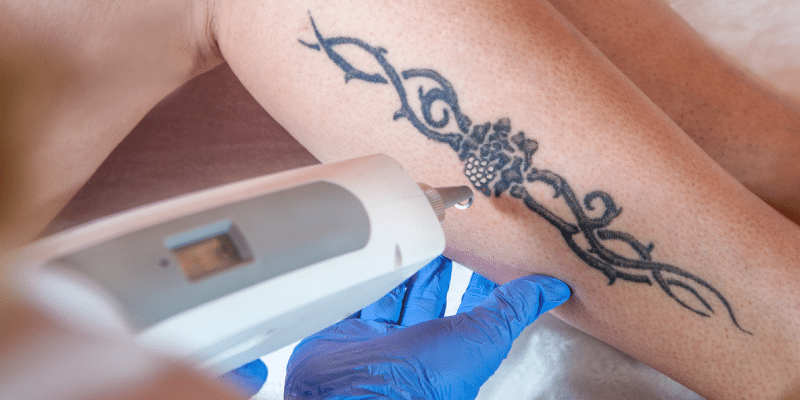 Picosure art of dermatology new york for Tattoo removal service