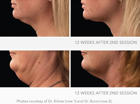 Coolsculpting Cool Mini before and after