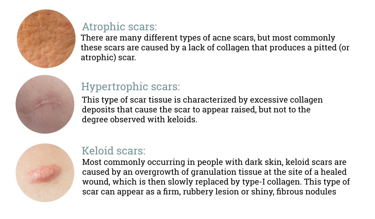 What Causes Acne Scars | APAX Medical & Aesthetics Clinic ...  |Acne Scar Types