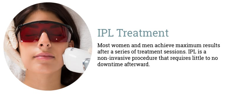 ipl-treatment