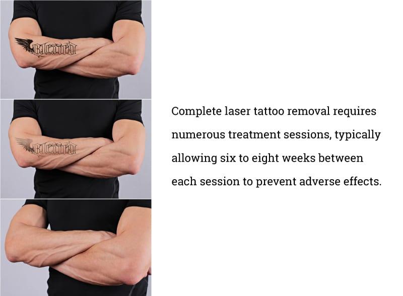 complete-laser-removal