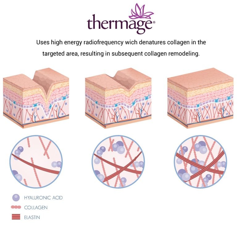 thermage2