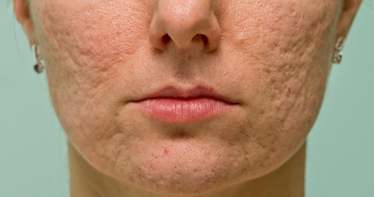 Kết quả hình ảnh cho atrophic scar