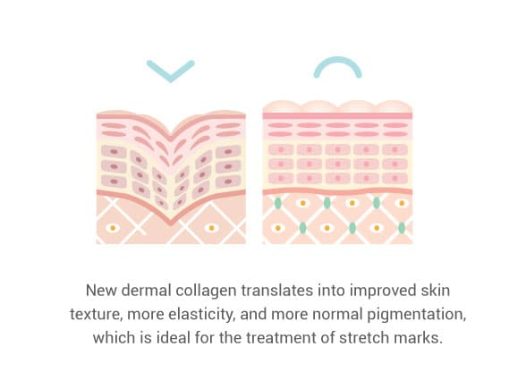 how to get more collagen