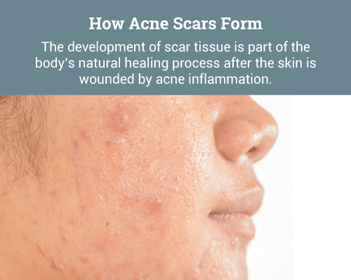 The-development-of-scar-tissue-is-part-of-the-body's-natural-healing-process-after-the-skin-is-wounded-by-acne-inflammation.