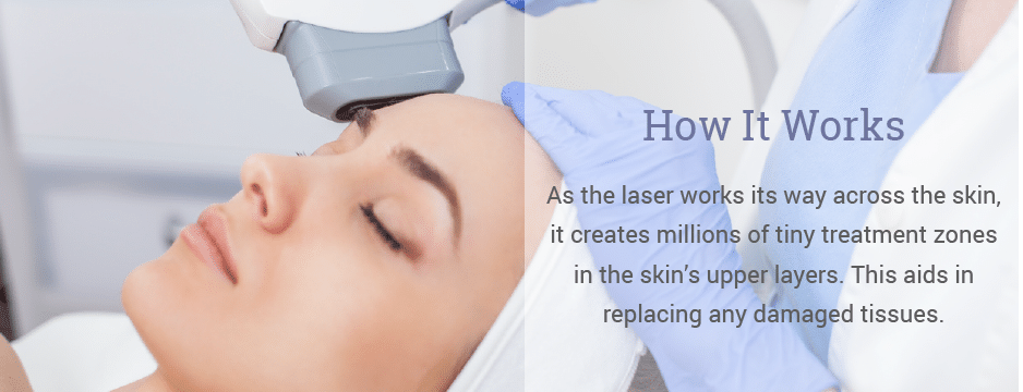 As the laser works its way across the skin, it creates millions of tiny treatment zones in the skin's upper layers. This aids in replacing any damaged tissues