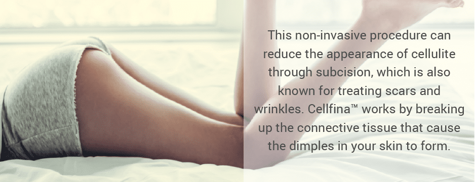This procedure can reduce the appearance of cellulite through controlled-depth subcision, which is also known for treating scars and wrinkles. Cellfina™ works by breaking up the connective tissue that causes the dimples in your skin to form.