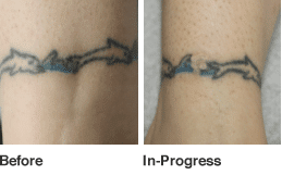 Tattoo Before and After in new york city