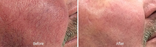Vascular Laser before and after