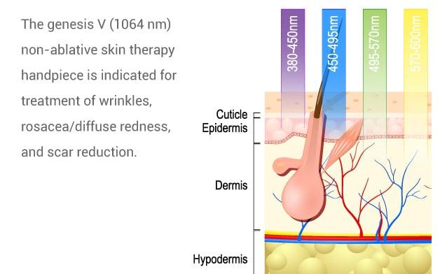 genesis-wrinkles