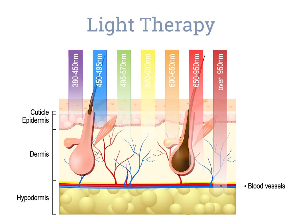 light-therapy
