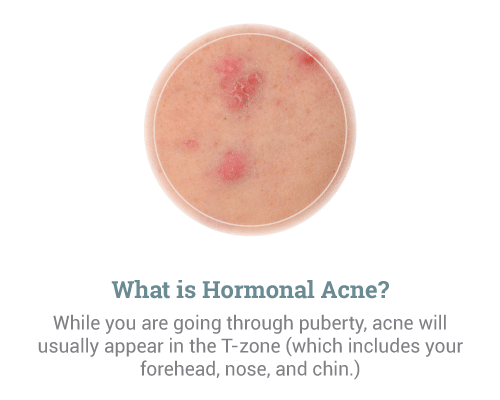 What-is-Hormonal-Acne-